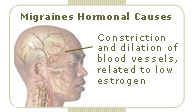 migraine headaches hormonal causes