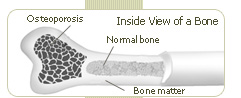 sedentary lifestyle increase risk for developing osteoporosis