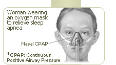 woman wearing an oxigen mask to relieve sleep apnea